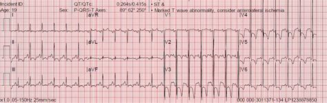 lvh pattern ecgs for ems lvh strain ischemia or what