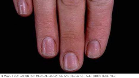 dent in nail bed slide show 7 fingernail problems not to ignore mayo clinic