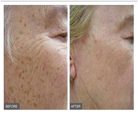 Per Protect Skin To Arrive Looking As Fab As Your Destination Fashiontribes Travel by Ipl Photorejuvenation