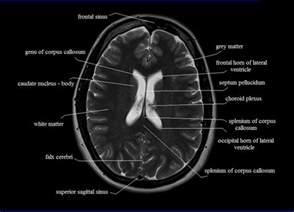 brain cross sectional anatomy ct pictures to pin on