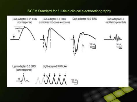 pattern erg iscev electrophysiological tests