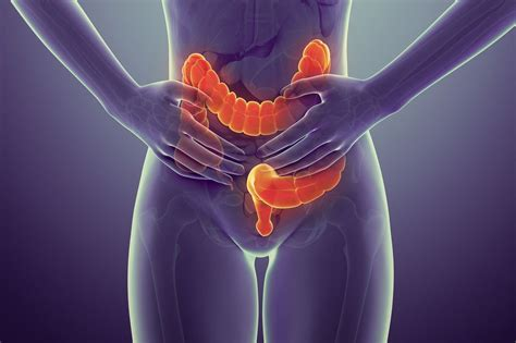 color cancer what are the early symptoms and signs of colon cancer