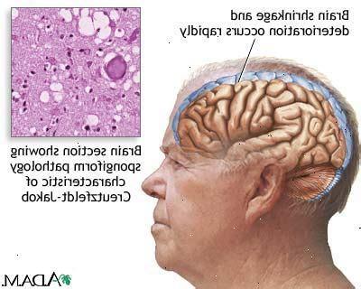l alzheimer porta alla morte malattia di creutzfeldt jakob zinpati