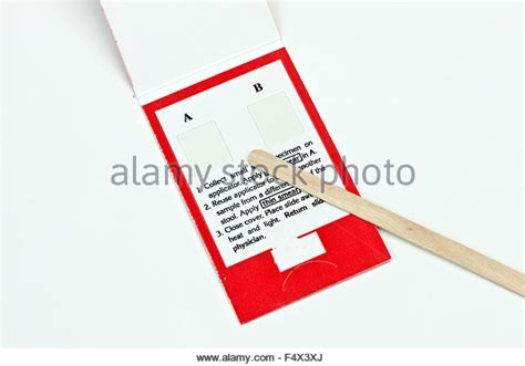 Presence Of Blood In Stool by Smear Test Stock Photos Smear Test Stock Images Alamy