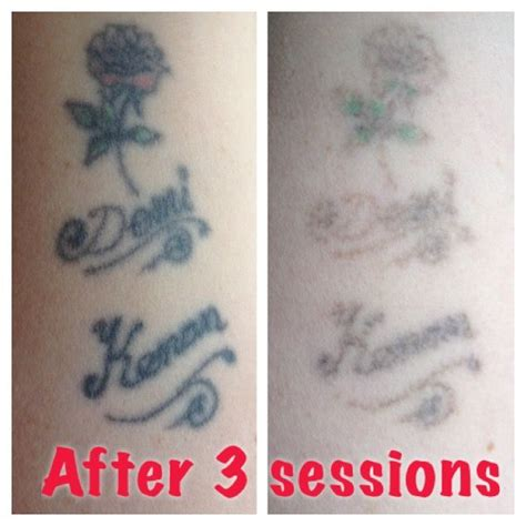 tattoo removal after 3 sessions amazing results after only 3 sessions with the laser