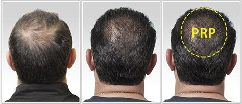 prp for hair loss 100 money back guarantee prp for hair loss treatments regrow your own hair 1