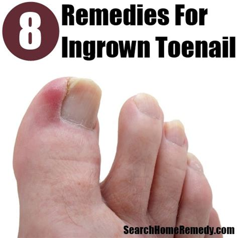 how to treat ingrown toenail best home remedies for