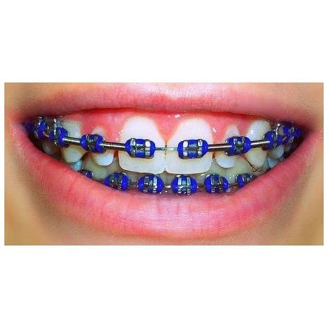 braces color ideas 32 best food ideas for palate expander braces images on