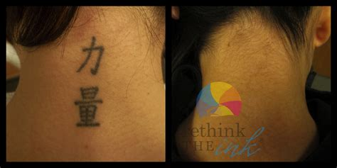 tattoo removal in orlando fl removal before and after picturesrethink the ink