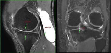 gonfiore interno ginocchio dolore al ginocchio interno dolori alle gambe dolore