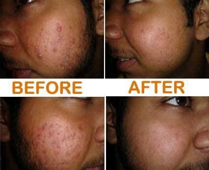 dinomarket pasardino acne pills masalah jerawat