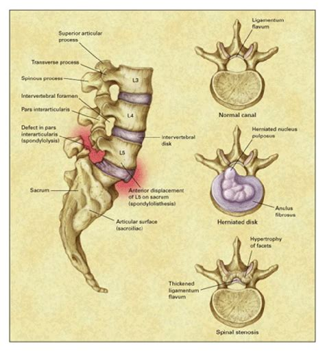 diagram of spine discs spine injury malis