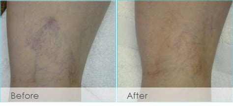 laser vein treatment san antonio tx boerne laser vein