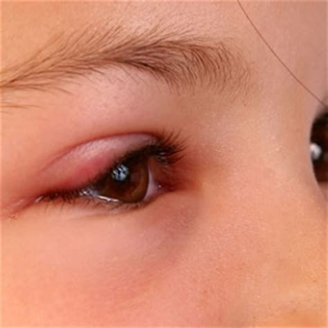 symptoms of pink eye 5 ways to cure pink eye naturally cure for pink eye home remedies