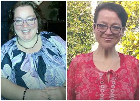 weight loss 6 weeks after gastric sleeve jen s gastric sleeve darebin weight loss surgery