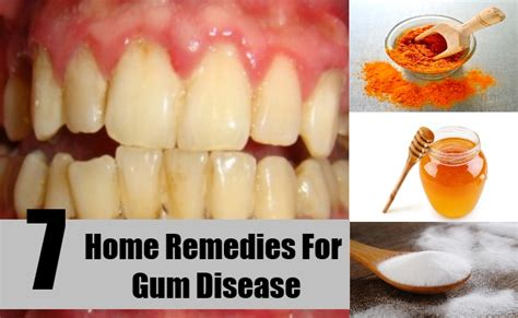 7 best home remedies for gum disease treatments