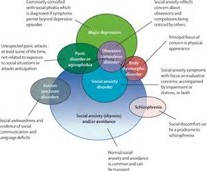 Social anxiety disorder the lancet