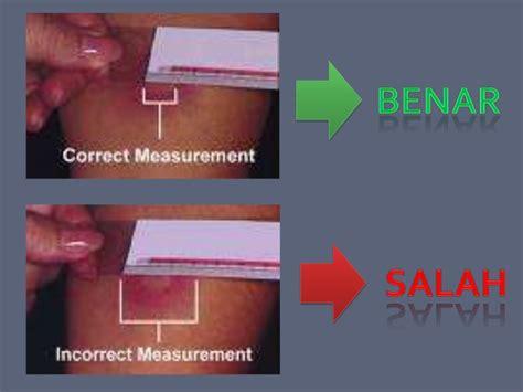 Alat Skin Test pitfalls pada tb anak