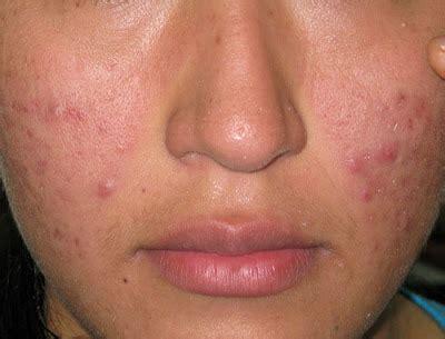 pusat perawatan kulit tips jitu  menghilangkan bekas