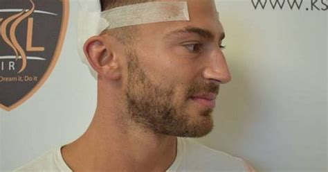 jobs in hair transplant technicianjobs london i m a celeb s jake quickenden had 163 5 000 hair transplant