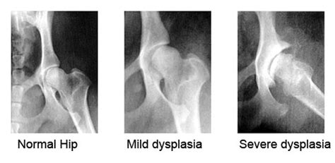 hip dysplasia healthy and happy