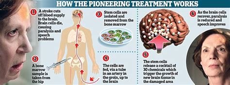 Herbal Carefor Stroke sclerosis research stem cells in stroke is this the future for ms