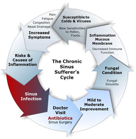 Sinus Efection Detox Symtom by Symptoms Treatment Of Chronic Fungal Sinusitis