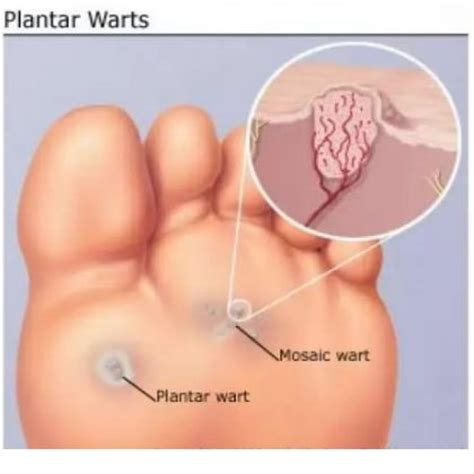 1000 Images About Plantar Warts On Pinterest Herbal How To Treat A Planters Wart