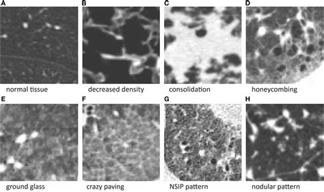 lung pattern classification frontiers optimization strategies for interactive