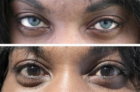 surgical eye color change artificial iris implant