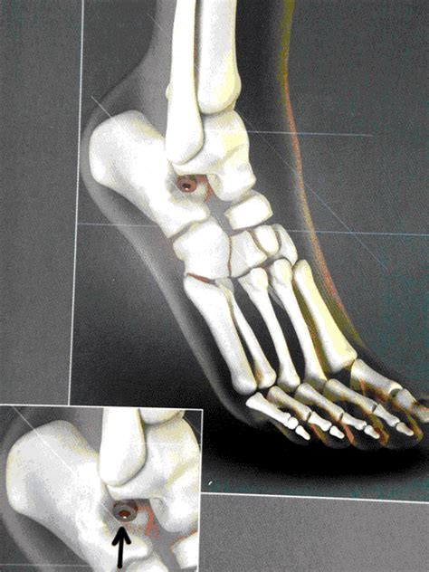 Mba Implant Surgery Foot Problems by Foot Surgery Services