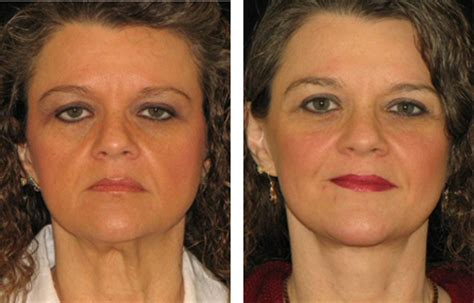 fat grafting plastic surgery kirn plastic surgery center face photos neck lift