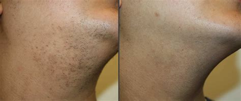 hair removal before after photos laser hair removal before after neck shino bay