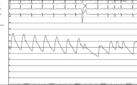 aborted sudden cardiac death aborted sudden cardiac death scd in a patient with