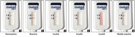 Alat Rapid Test Hiv hidup mesti diteruskan pemeriksaan hiv kita lakukan sendiri oraquick advance rapid hiv 1 2