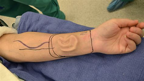 doctors grow new ear on arm of cancer victim sherrie walter abc news