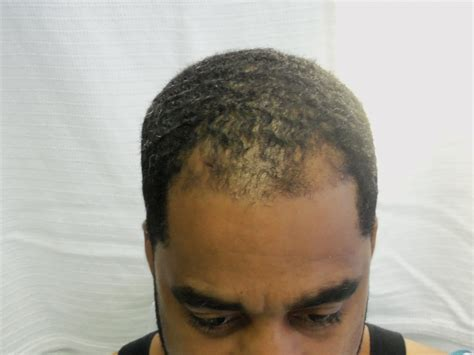 hairline restoration for black men hair restoration in african americans black hair