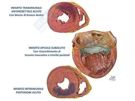 l infarto del miocardio patologia generale l infarto del miocardio