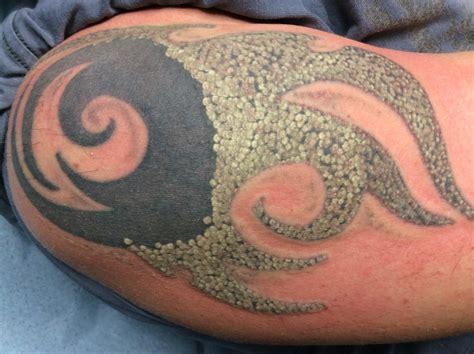 hd esthetique tattoo removal d 233 tatouage laser
