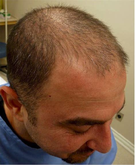 black man 3000 grafts hair transplant 3000 grafts top ten 2500 3000 graft hair