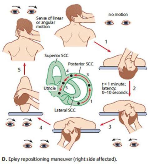 dizziness exercises inner ear benign paroxysmal positional vertigo bppv oliver