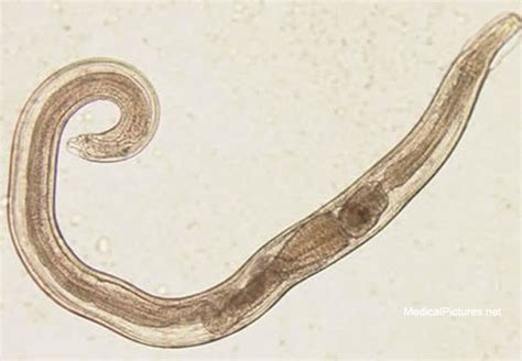 pin worms in dogs pinworms pictures