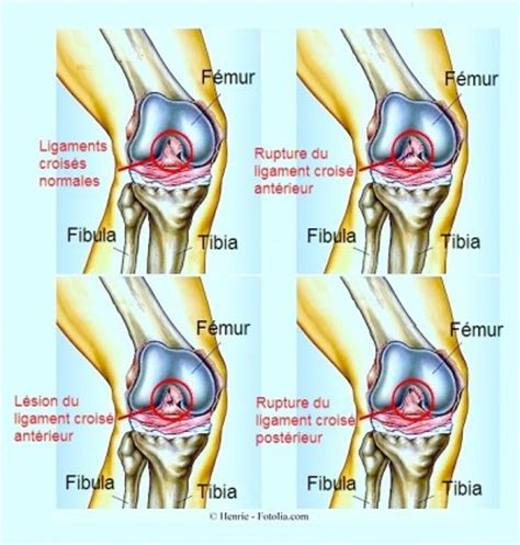 douleur au genou et gonflement page 4 kinesitherapie24