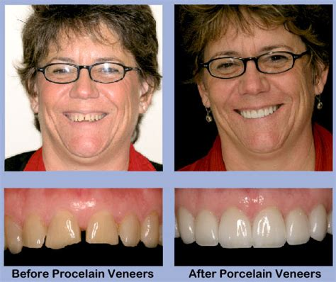 comfort dental lafayette indiana dental veneers comfort dental lafayette indiana