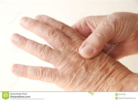 aching with aching knuckle on stock photo image 32441780
