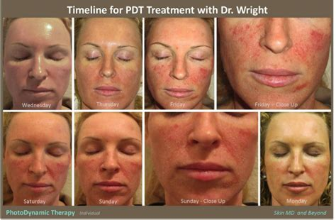 dermatology blue light treatment photodynamic therapy plano tx pdt frisco tx acne