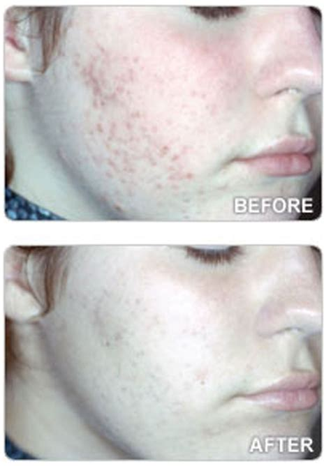 neutrogena light therapy acne mask before and after is acne affecting your confidence we put the