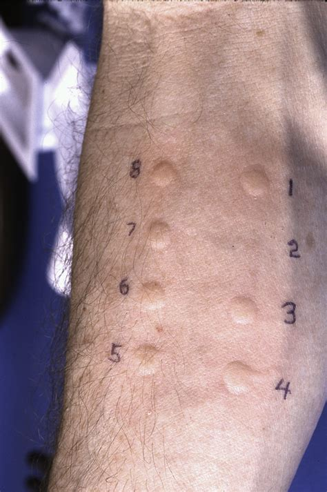 skin test skin testing for allergies the diagnostic clinic