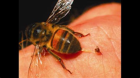 para la picadura de abejas y avispas youtube