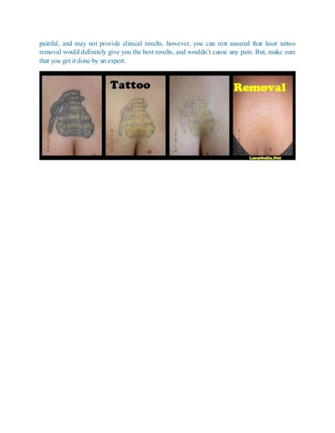 laser hair removal over tattoos hair removal removal through laser technique